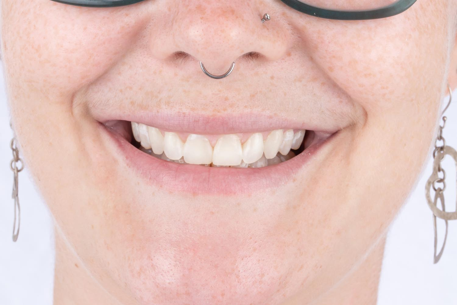 Dental Before & Afters